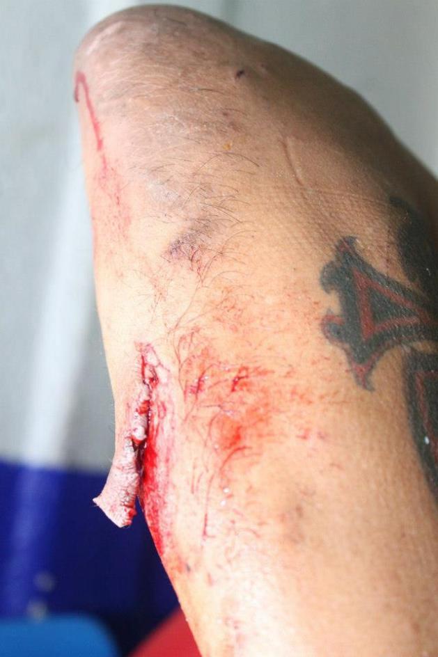 El brazo mal herido de Damián 666 / Arena Naucalpan - 2 de dic. de 2012 / Imagen by IWRG Arena Naucalpan en Facebook