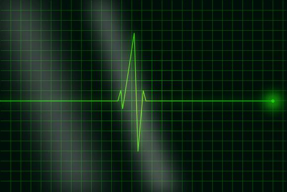 electrocardiogram-36732_960_720