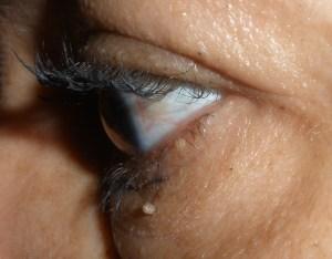 eye-003