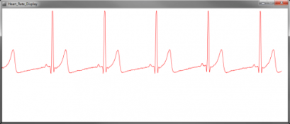HeartRate_Normal