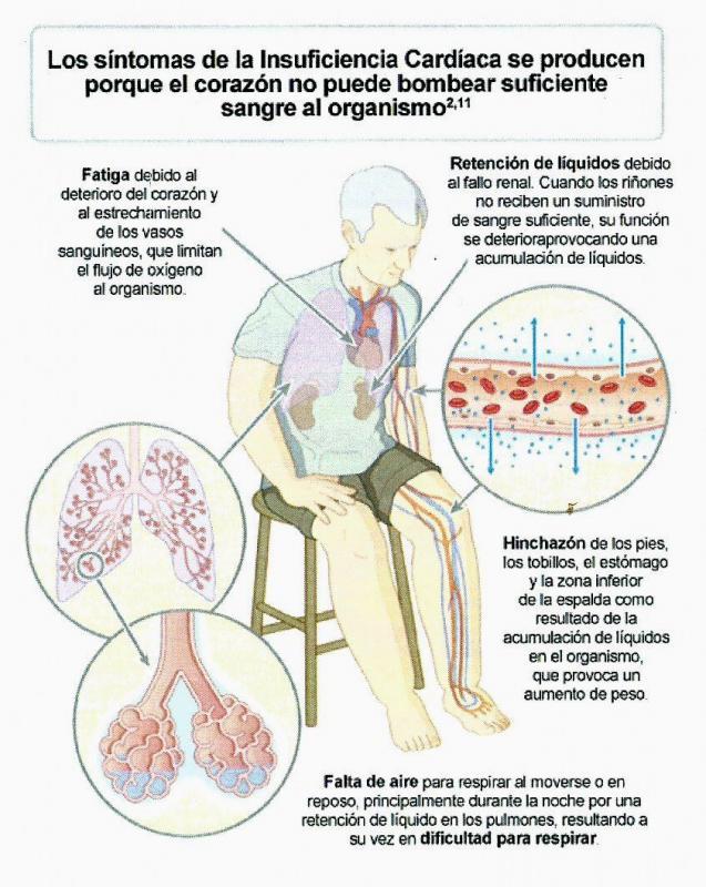 Insuficiencia cardiaca: de las estructuras cerradas a la continuidad asistencial