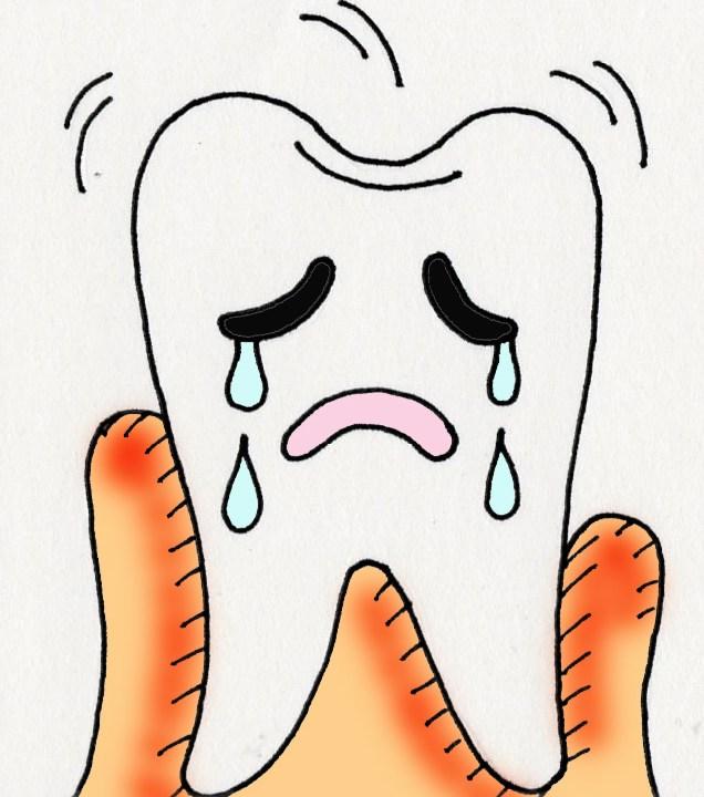 虫歯 神経抜く