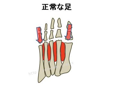 正常な足の骨格