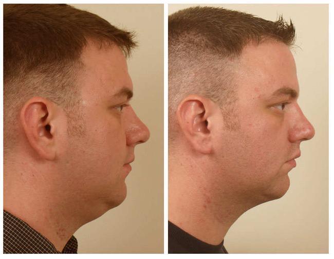 اسهل تمارين لازالة دهون الذقن removal-of-fat-from-