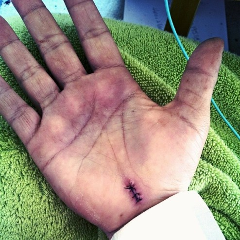 My hand after Carpal Tunnel Release surgery