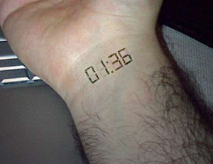 implanted-wristwatch