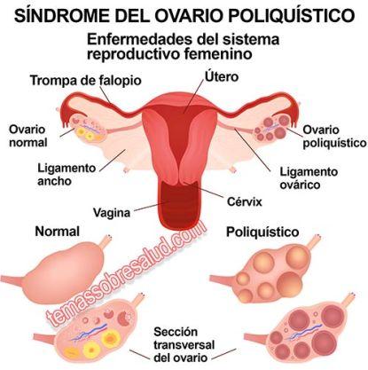 Resultado de imagen de síndrome del ovario poliquístico