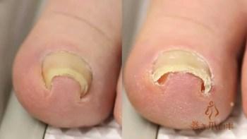 Youtubeで500万回再生の巻き爪治療用アイテム「巻き爪ロボ」が凄い!