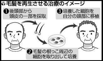 東京医大や資生堂、毛髪再生へ今年から臨床研究(読売新聞)   Yahoo ニュース