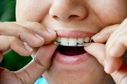 dental retainer replacement