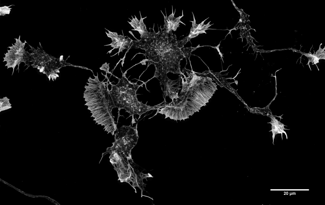 """SUM 110913 Cort Neurons 2.5d in vitro 488 Phalloidin no perm 4 cmle-2"" by Howard Vindin - Own work. Licensed under CC BY-SA 4.0"