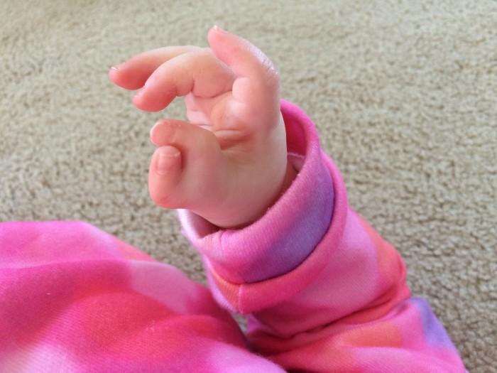 Thumb before surgery