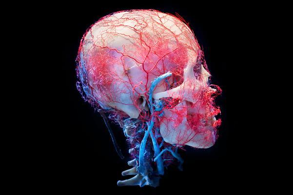 Um crânio humano preservado.  Da exposição New Cruelty, encomendado por True Entertainment.