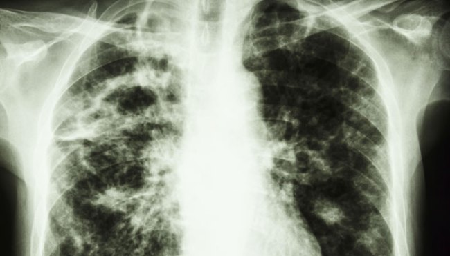 World Tuberculosis Day 2015: 5 lesser known facts about the disease