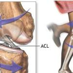 Random image: acl-cross-section