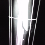 Random image: how-long-to-recover-from-a-broken-tibia-jim-leonhard-photo