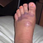 Random image: how-to-treat-a-bruised-foot-aaron-harang-photo