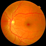 Random image: how-long-to-heal-a-scratched-retina-tony-parker-photo