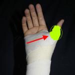 Random image: how-to-avoid-chronic-thumb-injuries-dustin-pedroia-photo