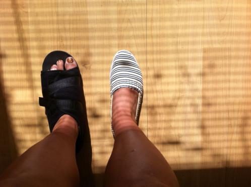 franken-foot1