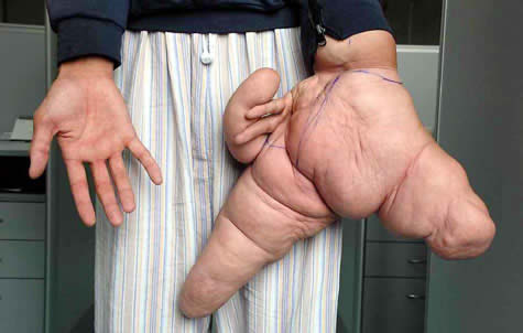 Man with mutant hand