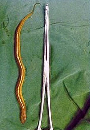 The deal eel lying next to the surgical instrument used to remove it (Picture: CEN)