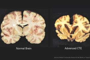 WEB_SPO_Concussion2_Boston-University-Center-for-the-Study-of-Traumatic-Encephalopathy