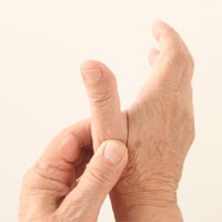 Basal Joint Arthritis in San Diego, CA