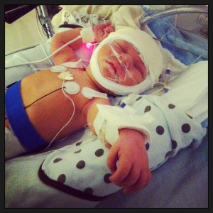 Echo stroke NICU Exclusively pumping