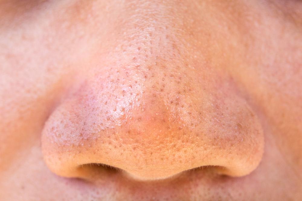 Blackheads removal method for fresh soft skin