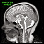 Almost Wordless Wednesday: The Brain