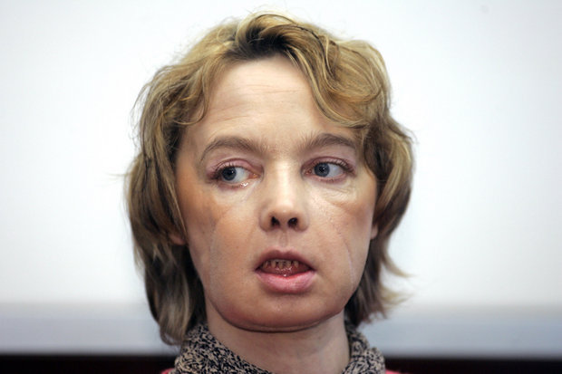 In this Feb. 6, 2006 file photo, Isabelle Dinoire, the woman who received the world's first partial face transplant with a new nose, chin and mouth, in an operation on Nov. 27, 2005, addresses reporters during her first press conference since the transplant at the Amiens hospital, northern France. (AP Photo/Michel Spingler, FILE)