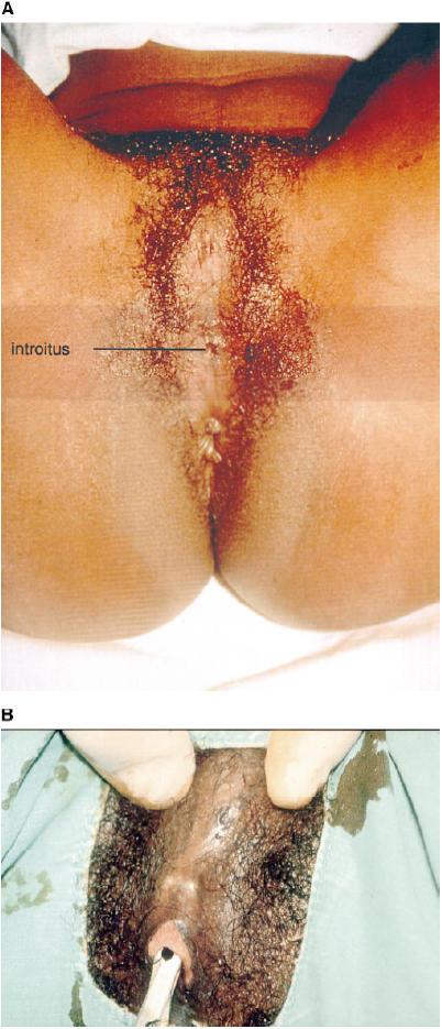 circumcised vagina