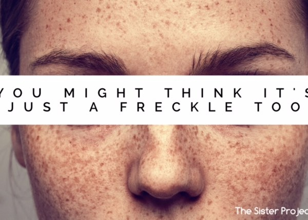 It Started As An Innocent Freckle