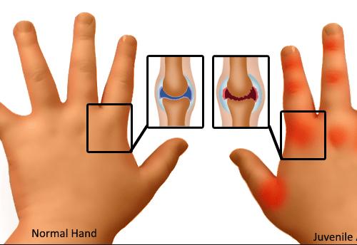 Ревматоидный артрит секс