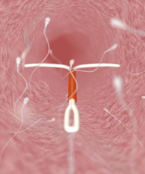 vaginalnaya-spiral-posle-rodov