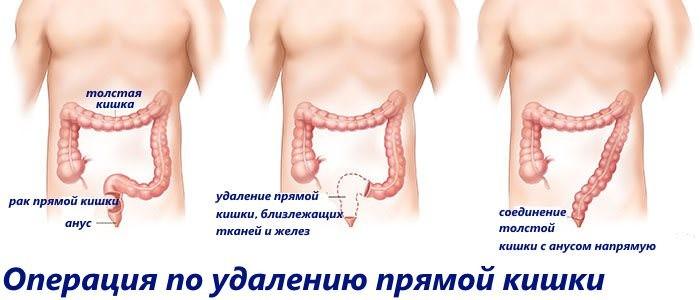 onlayn-bdsm-s-yaponkoy