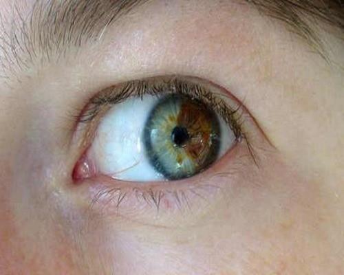 Почему меняется цвет глаз у новорожденных 4