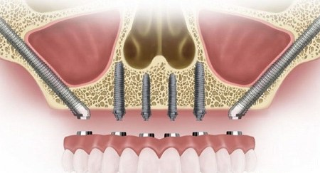 Global Zygomatic and Pterygoid Implants Market Is Expected To Reach US$ 408.5 Mn by 2026 | Credence Research
