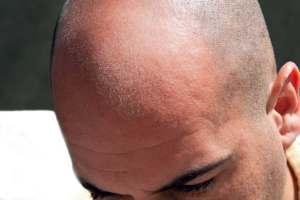 Medicamento para la calvicie o para la artritis