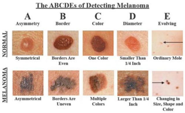 A chart to test your moles to tell if they may or may not be cancerous