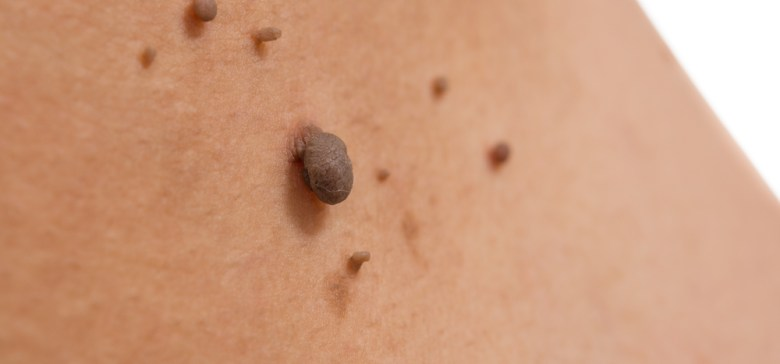 skin of a woman with moles