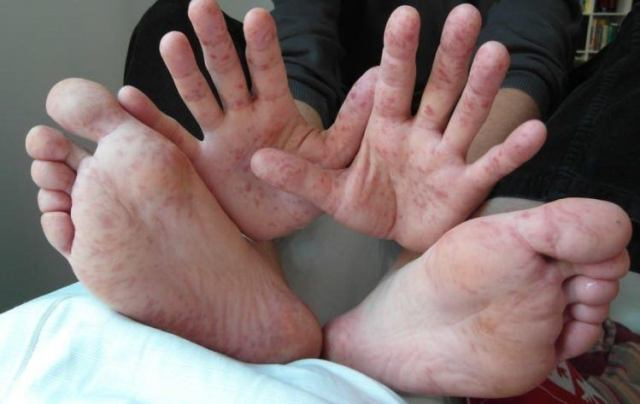 Hands and feet infected with HFMD.