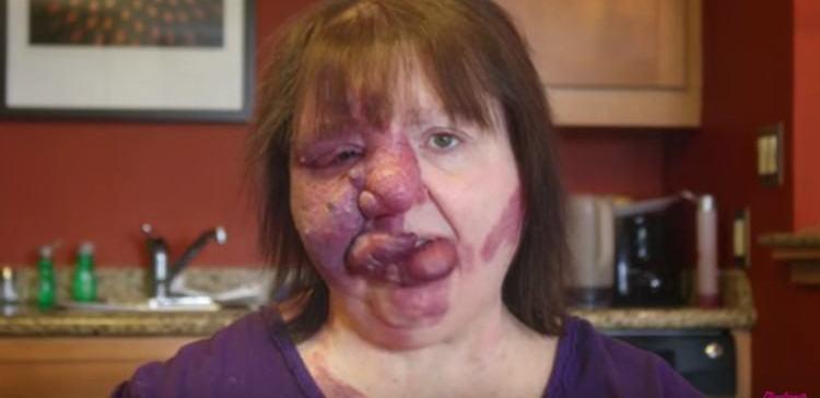 Woman uses makeup to cover her birthmark.