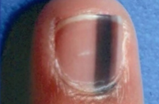 dark band nail