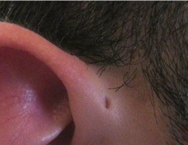 close-up of a preauricular sinus