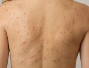 view of a woman's back covered in acne