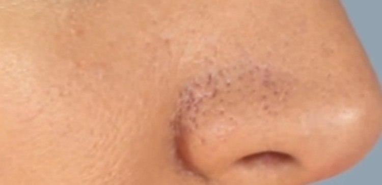 Closeup image of pores on nose.