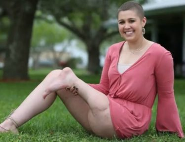 Young woman with amputated leg.