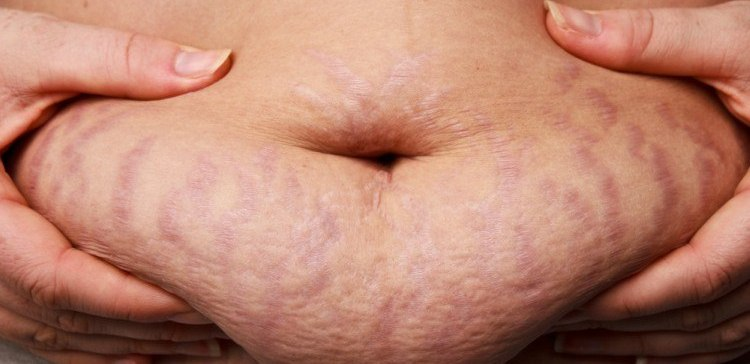 Image of woman with tummy stretch marks.